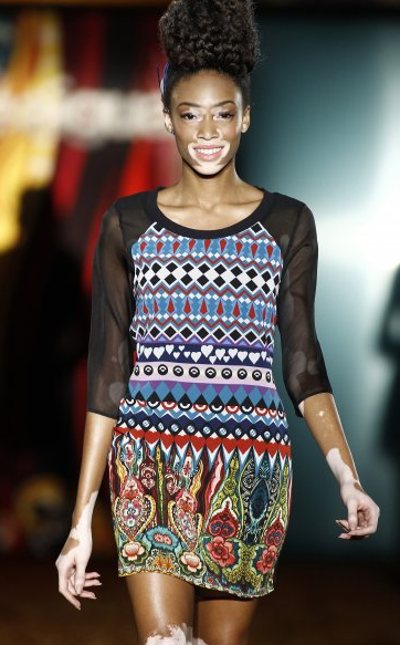 Friendly-Madrid-Desigual-Winnie-Harlow